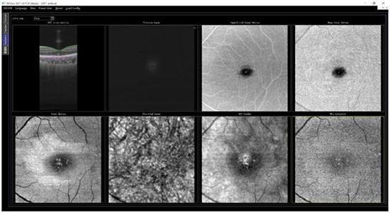 眼科光学相干断层扫描仪临床试验图3